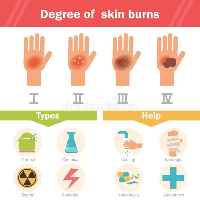 Grad av hudbrännskador vektor stock illustrationer