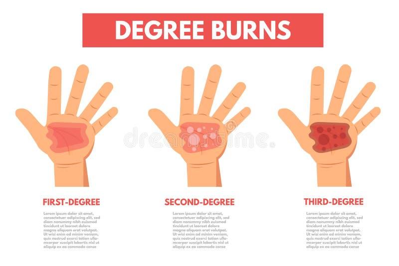 Gradbrännskador av hud Infographic vektor illustrationer