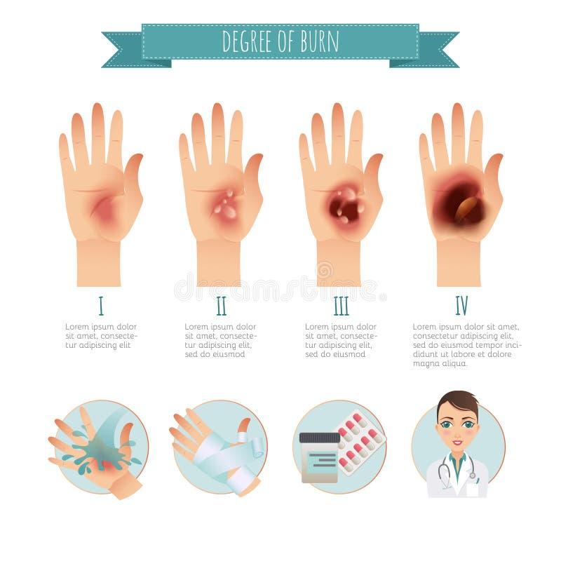 Grado de quemaduras de la piel tratamiento de las for Quemaduras de cuarto grado