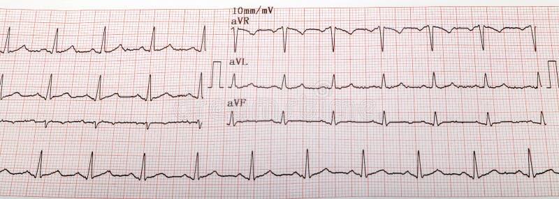 graf för ecgekgelectrocardiogram royaltyfri fotografi