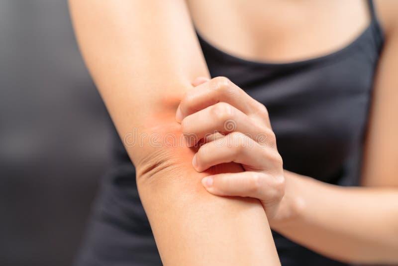 Graffio della mano delle donne il prurito sul concetto del braccio, di sanità e della medicina immagini stock