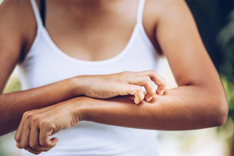 Graffio della mano delle giovani donne il prurito sul braccio fotografia stock libera da diritti