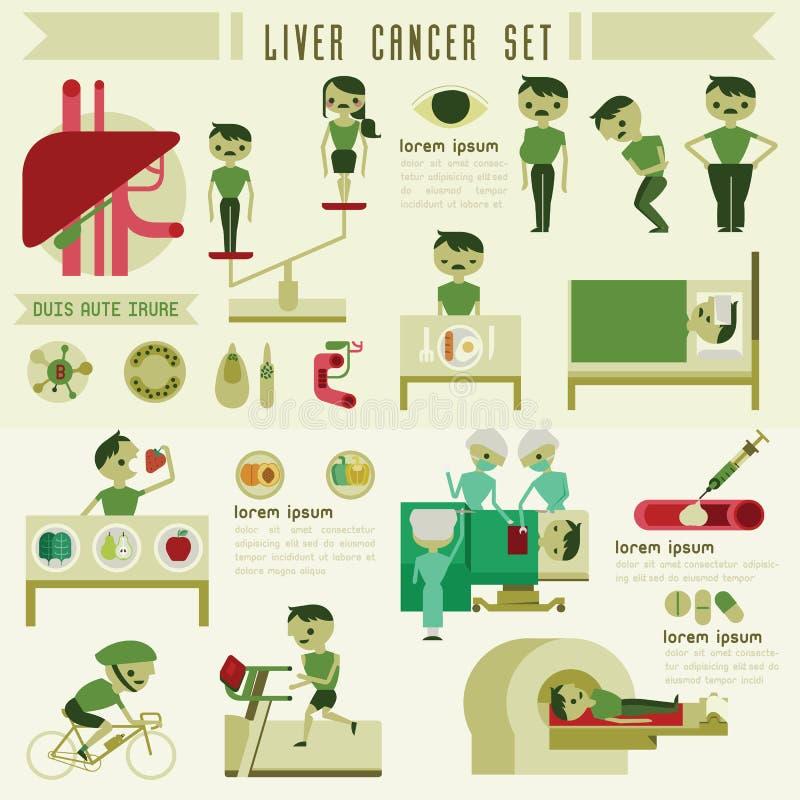 Grafico dell'insieme e di informazioni del cancro del fegato illustrazione vettoriale