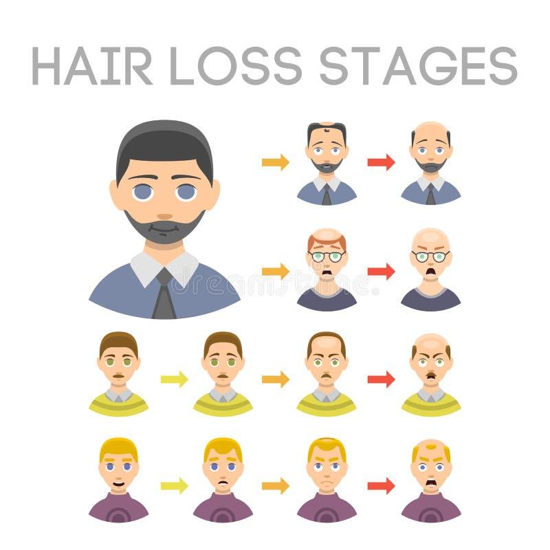 Grafico di informazioni dei tipi delle fasi di perdita di capelli di calvizile illustrati sul vettore della testa del maschio illustrazione di stock
