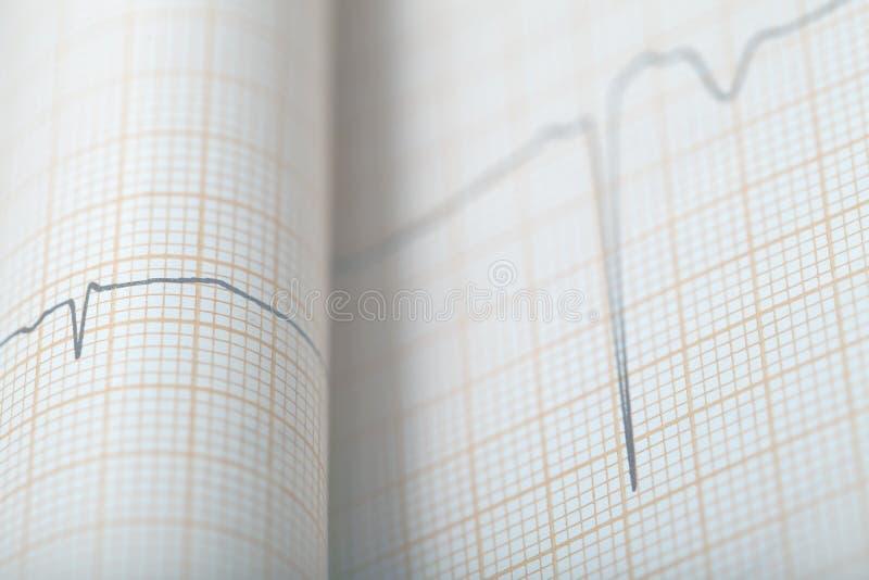 Grafico piegato di ECG, fondo medico fotografia stock