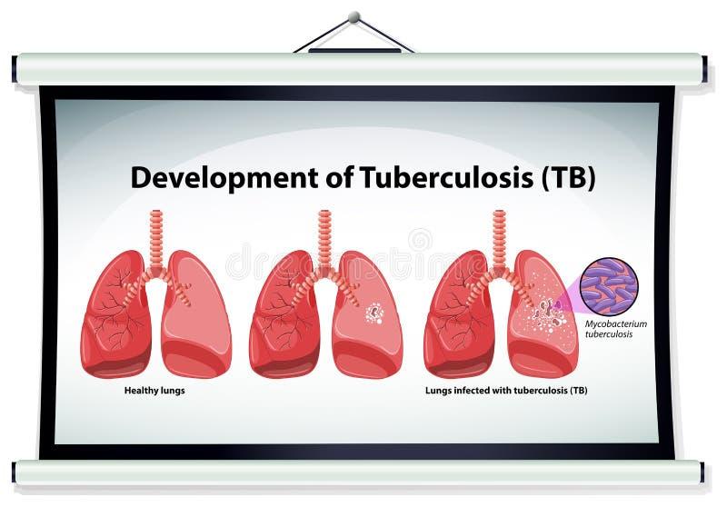 Grafiek die ontwikkeling van tuberculose tonen stock illustratie