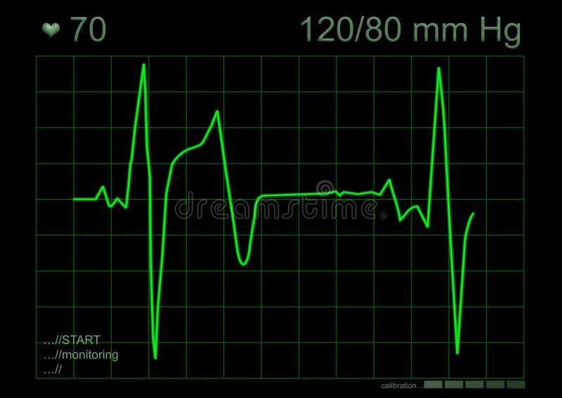 Grafiek ECG royalty-vrije stock foto's