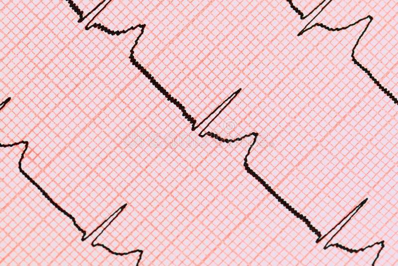 Grafiek ECG stock foto's