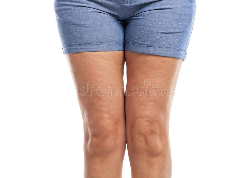 Graisse et cellulites sur les jambes images stock