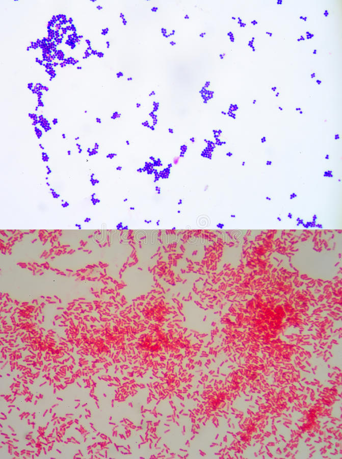 Gram staining. Also called Gram's method, is a method of differentiating bacterial species into two large groups (Gram-positive and Gram-negative royalty free stock images