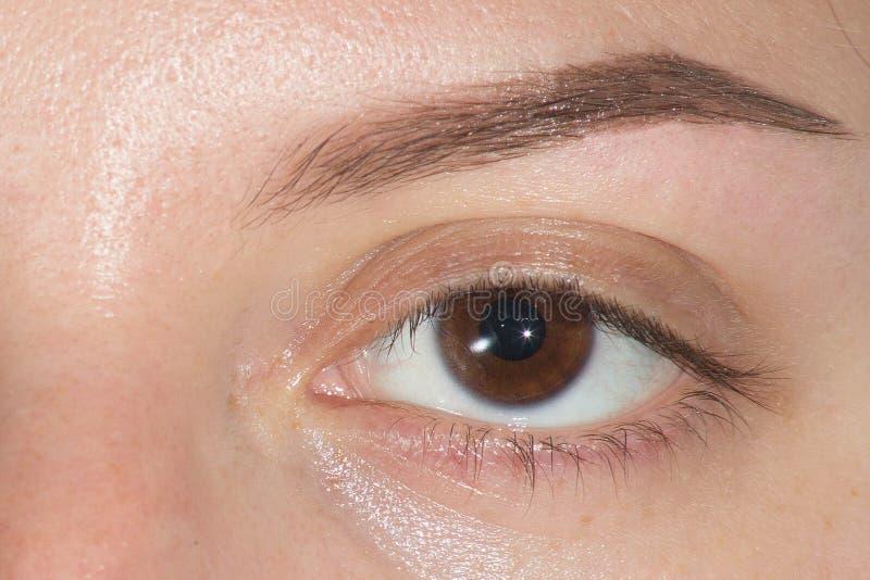 Grand sourcil d'oeil après correction photo stock