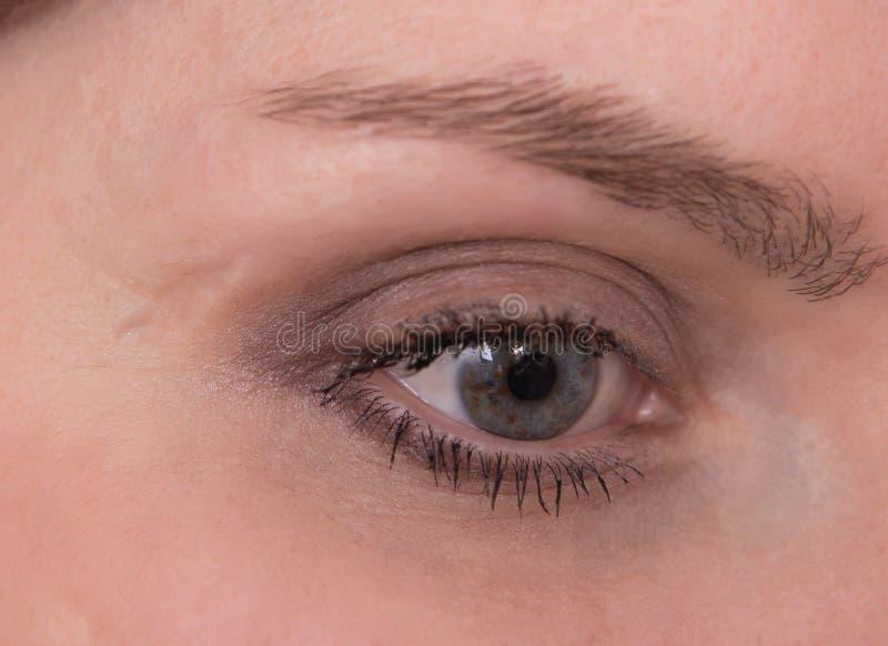 Grande cicatrice vicino all'occhio sul fronte della ragazza caucasica, primo piano, cosmetologia fotografie stock libere da diritti