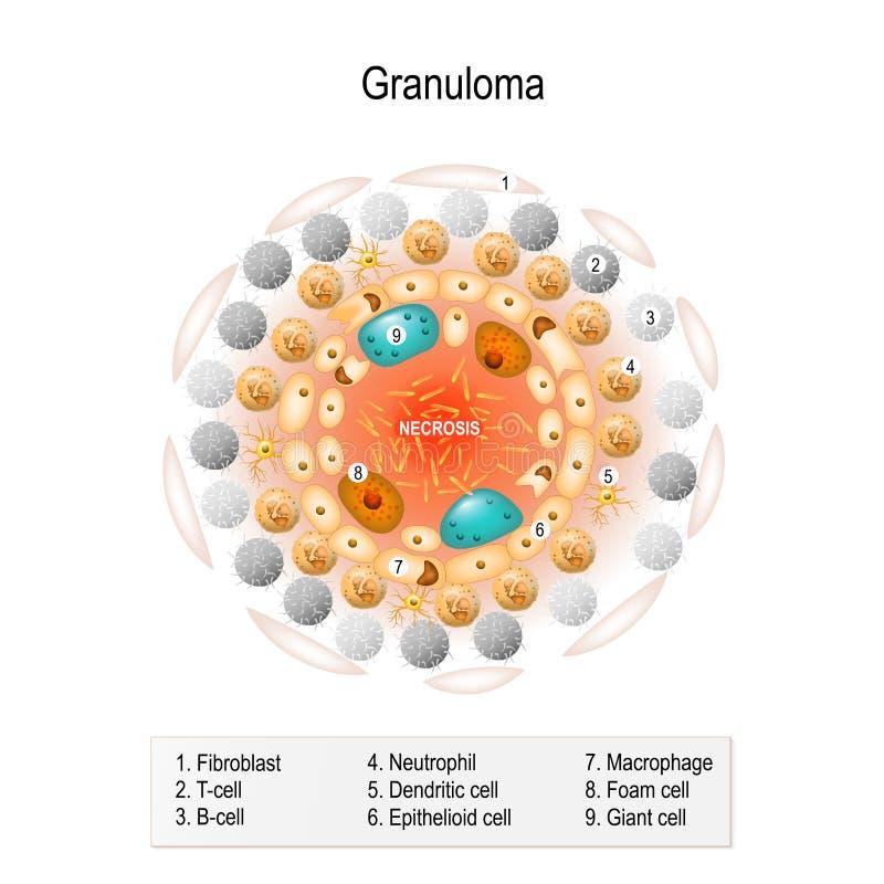 Granuloma ilustracja wektor