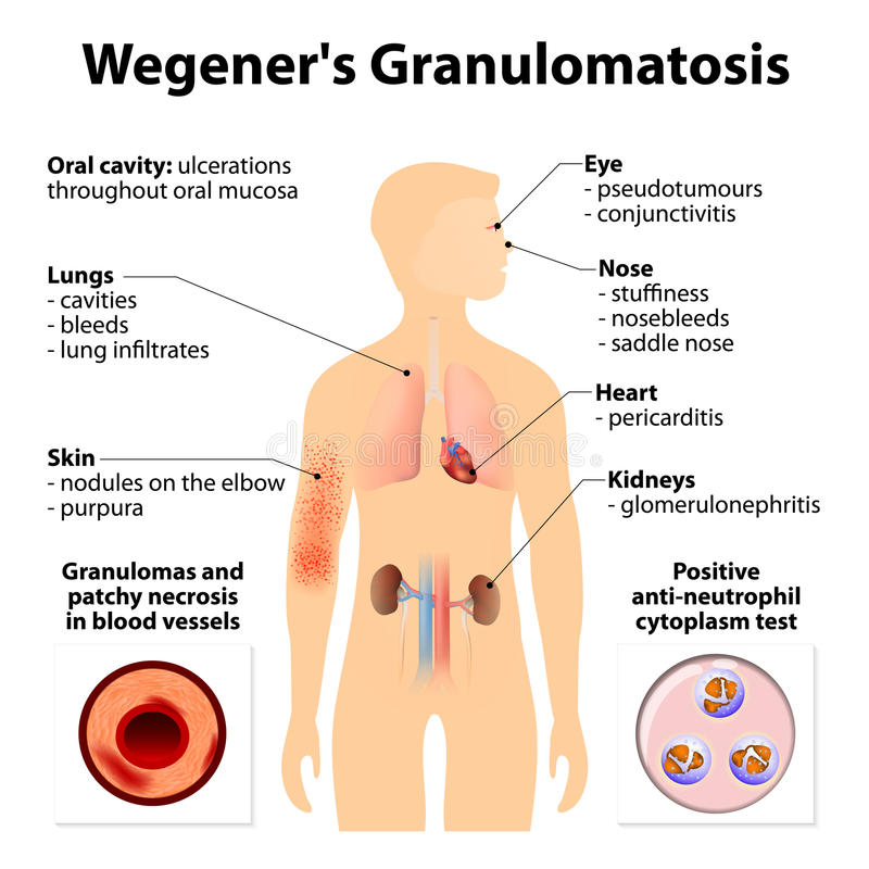 Granulomatosis vektor illustrationer