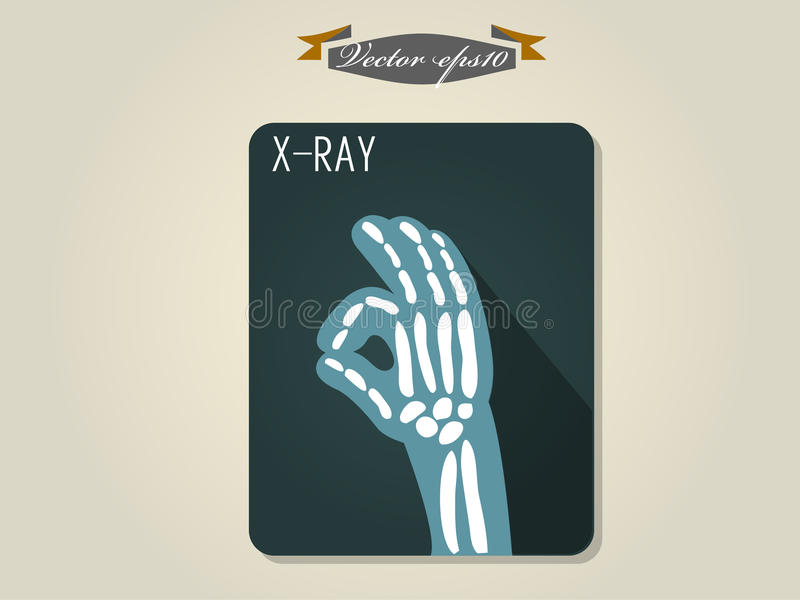 Graphic design vector of x ray film of hand stock illustration