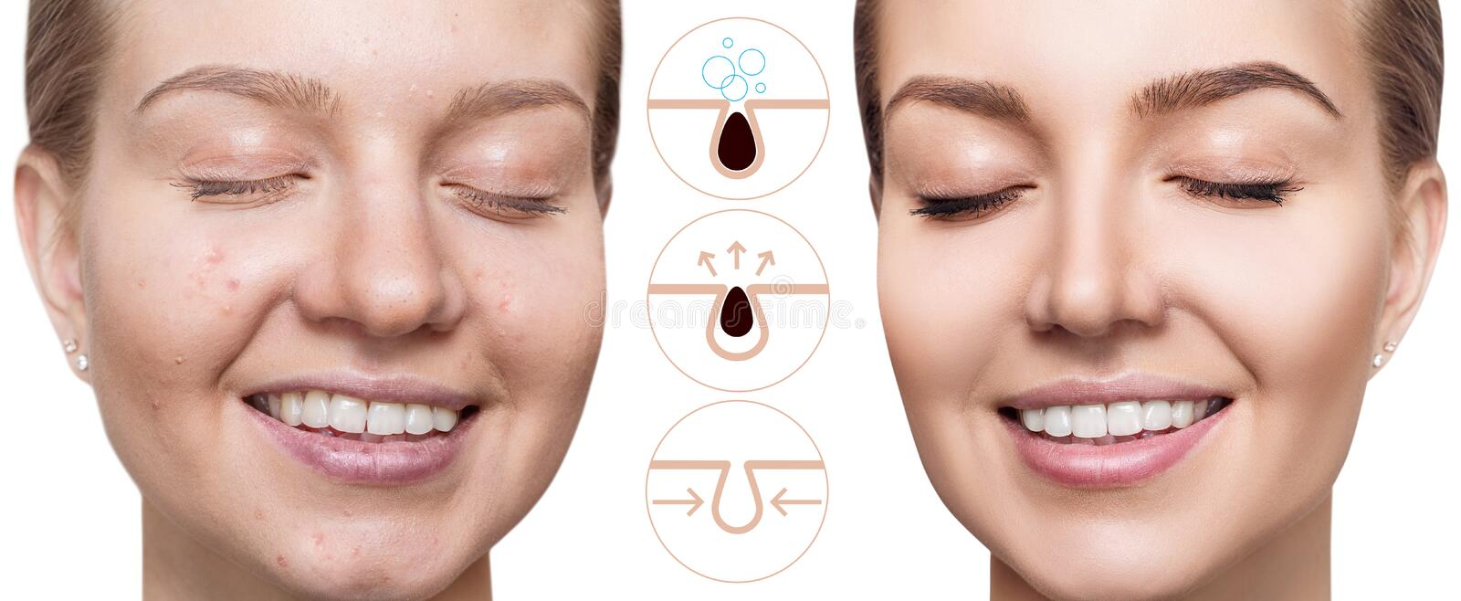 Graphically shows how to pollute and clean the pores on face. stock photos