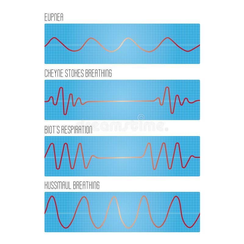 Graphique de la respiration, les types pathologiques de respiration illustration de vecteur