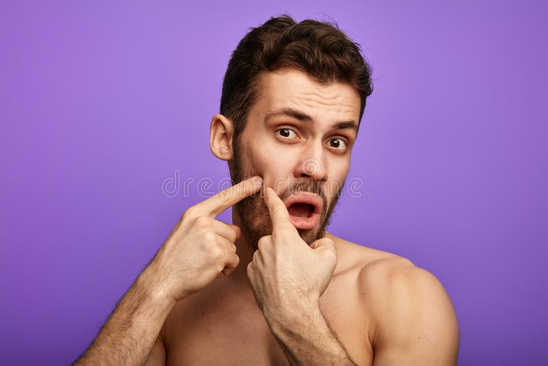 Grappige mens die de pukkel op zijn wang plukken stock foto