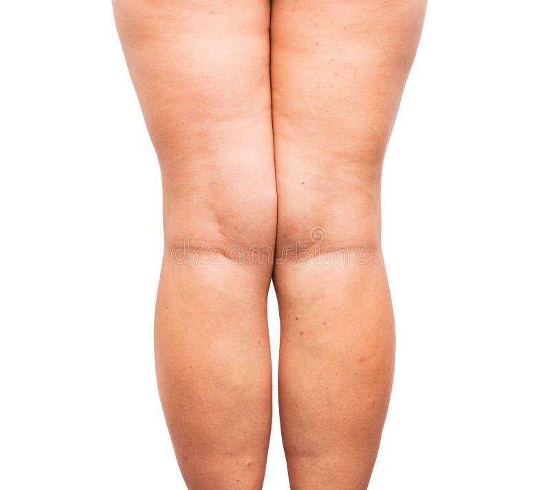 Grasa excesiva en las piernas imagen de archivo