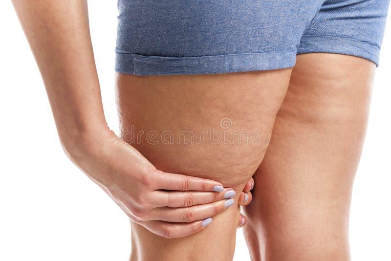 Grasa y celulitis en las piernas fotos de archivo