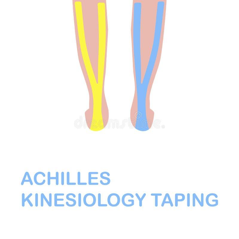 Gravação do kinesiology de Achilles Gravação correta do kinesiology ilustração do vetor