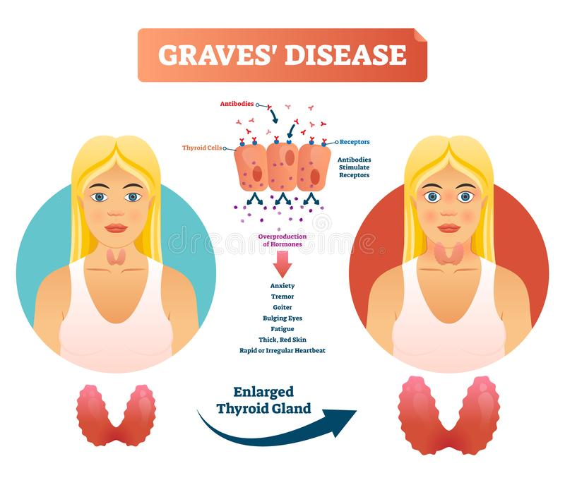 Graves disease vector illustration. Labeled diagnosis symptoms diagram stock illustration