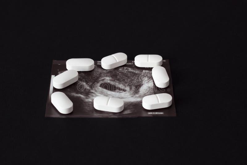 Gravidanza, un colpo dell'uzi e pillole su un fondo nero Aborto, primo piano fotografie stock libere da diritti