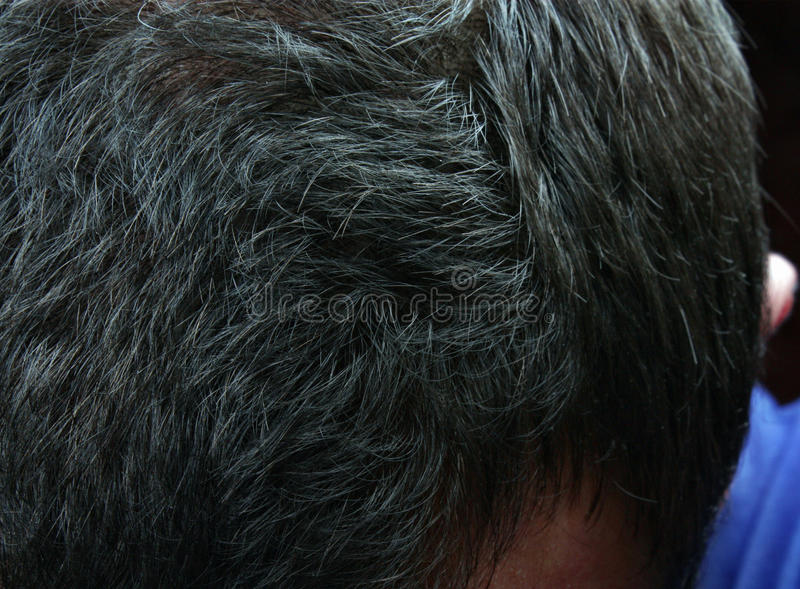 Graying hair. In a man disease stock photography