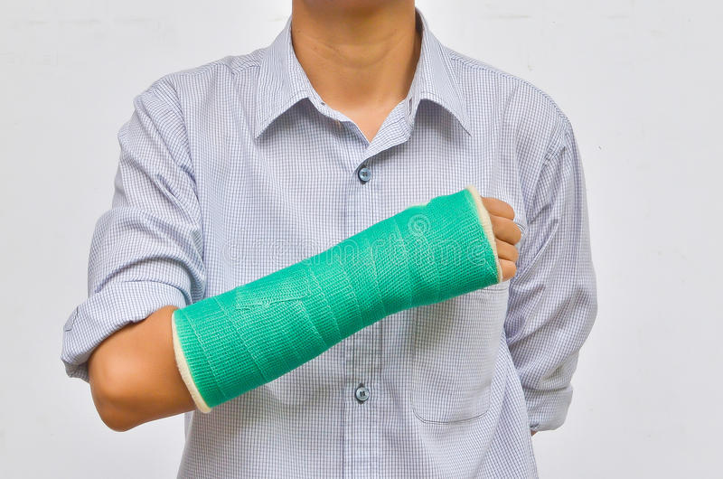 Green cast on hand and arm stock photo