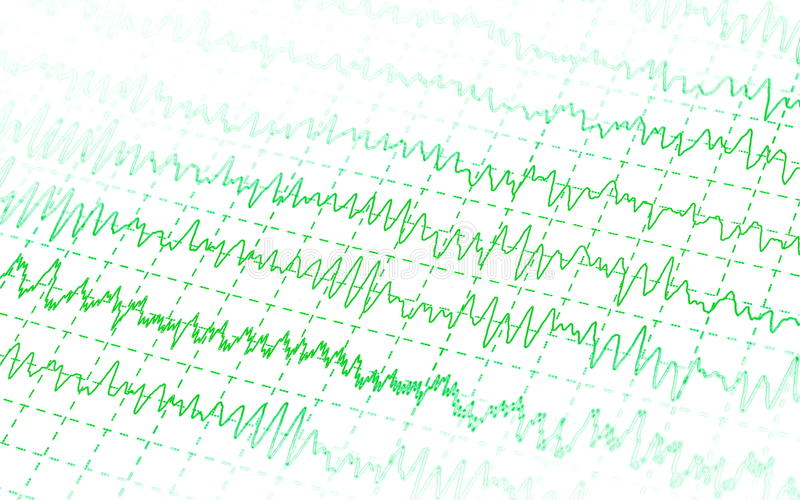 Green graph brain wave EEG isolated