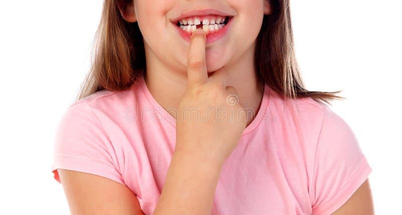 Gril amichevole gli che mostra i denti rotti fotografia stock libera da diritti
