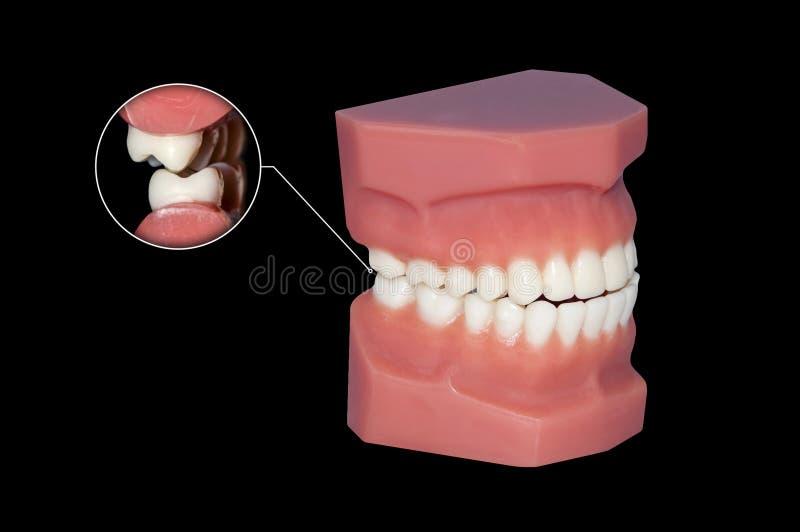 Grincer d'haut étroit de molaires dentaires de dents images libres de droits