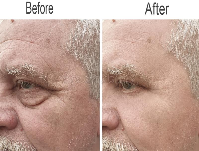 Grinza, fronte, pelle, guancia, fronte, sopracciglia, di sollevamento immagini stock