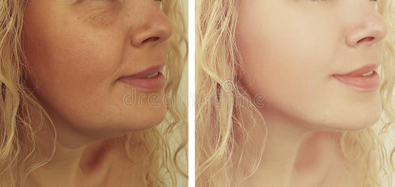 Grinze adulte della donna che sollevano estetista prima e dopo le procedure del collage fotografia stock