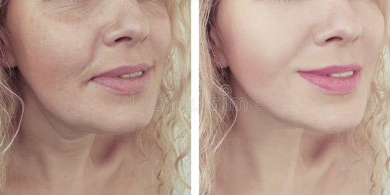 Grinze adulte della donna che sollevano l'estetista di terapia prima e dopo le procedure del collage immagini stock