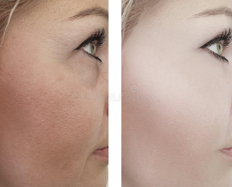 Grinze adulte della donna che sollevano prima e dopo le procedure del collage immagini stock