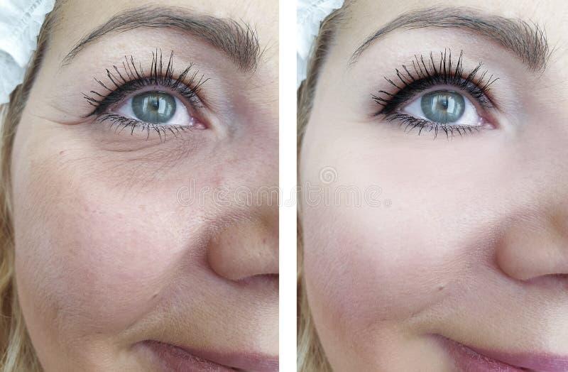 Grinze adulte della donna prima e dopo le procedure del collage fotografia stock libera da diritti
