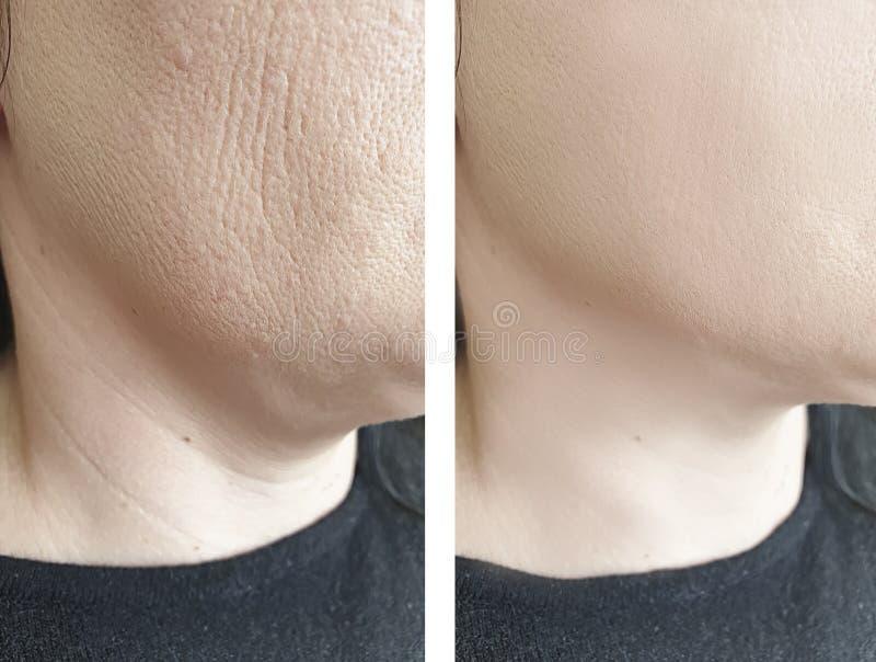 Grinze del elderlyface della donna prima e dopo il trattamento antinvecchiamento di sollevamento di rigenerazione di biorevitaliz immagine stock