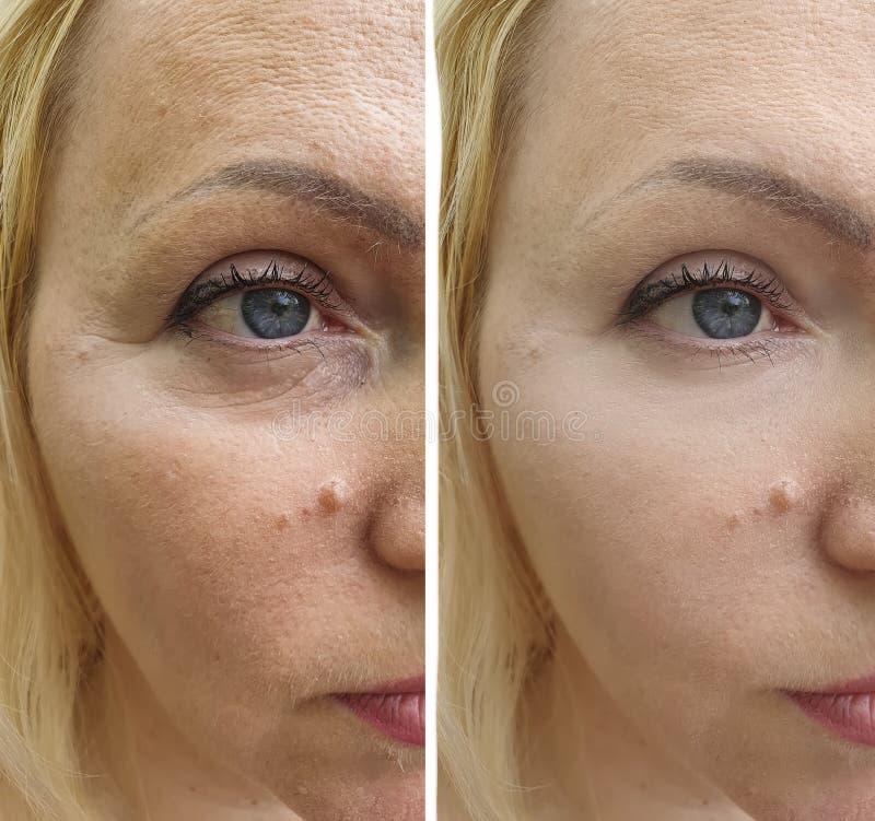 Grinze del fronte della donna prima e dopo la differenza di sollevamento di rejuvenationtreatment di terapia immagine stock libera da diritti