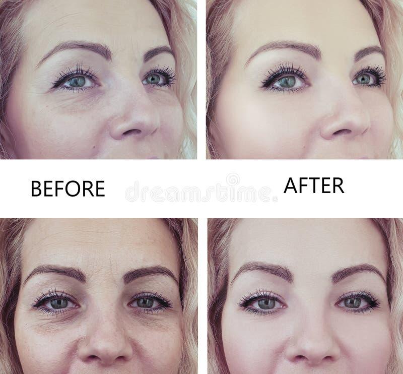 Grinze della donna che sollevano prima e dopo il trattamento di procedura di terapia di rimozione del collage immagini stock