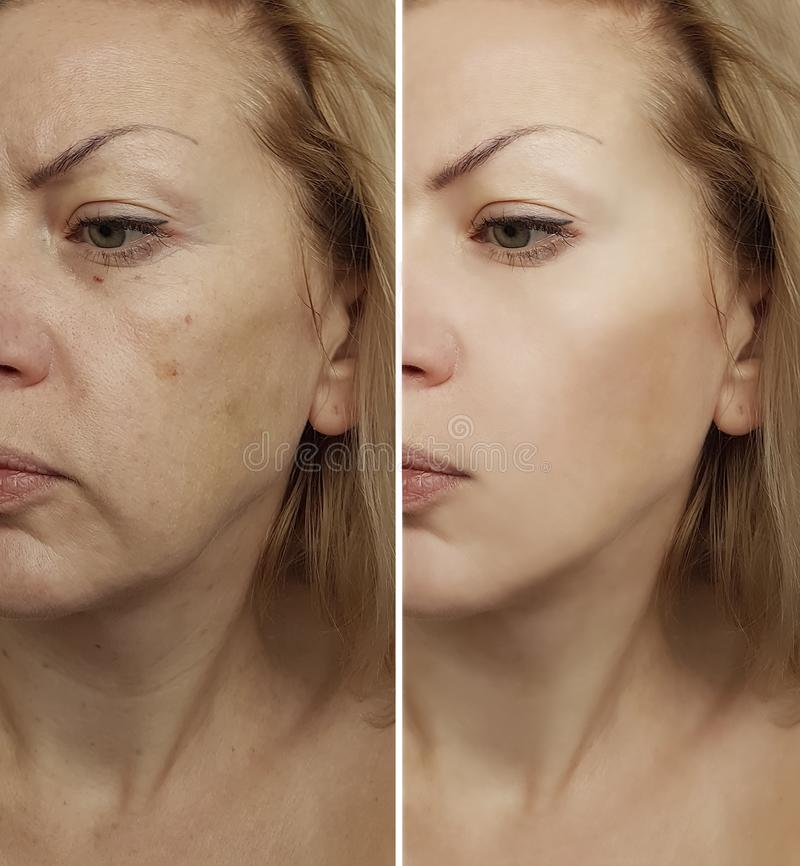 Grinze della donna del fronte prima e dopo ravvivamento di procedura immagini stock