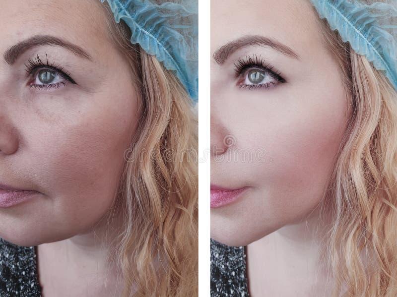 Grinze della donna prima e dopo il trattamento di procedura di terapia di rimozione immagini stock libere da diritti