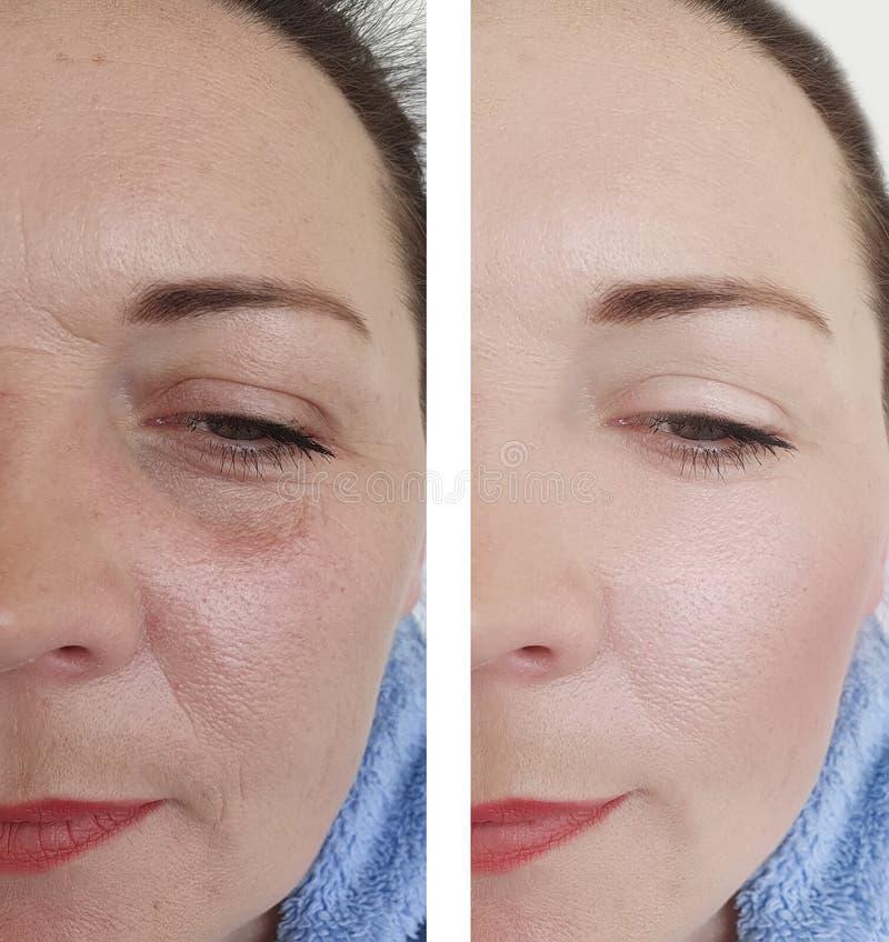 Grinze femminili prima dopo le procedure di sollevamento di correzione immagini stock