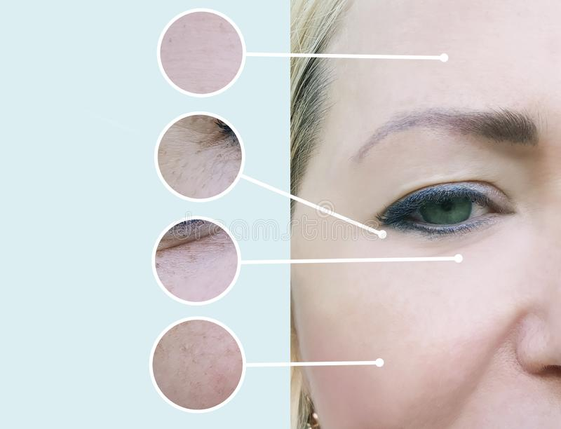 Grinze femminili prima e dopo il collage di procedure di terapia dell'estetista immagine stock libera da diritti