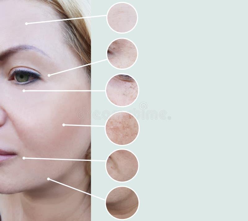 Grinze femminili prima e dopo il collage maturo di procedure di terapia dell'estetista di rigenerazione fotografia stock libera da diritti