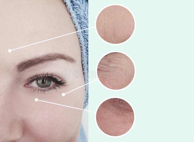 Grinze prima dopo i risultati di sollevamento invecchianti di correzione di concetto del collage della pelle fotografia stock libera da diritti