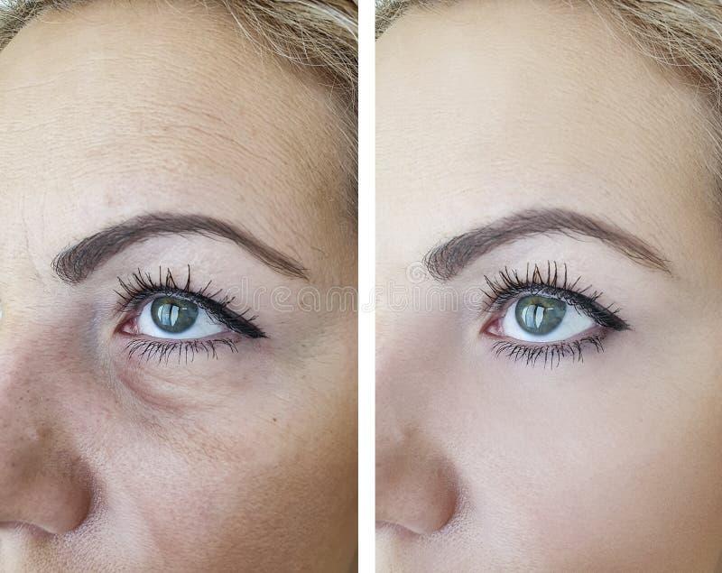 Grinze prima e dopo i risultati di sollevamento di correzione di invecchiamento della pelle fotografia stock
