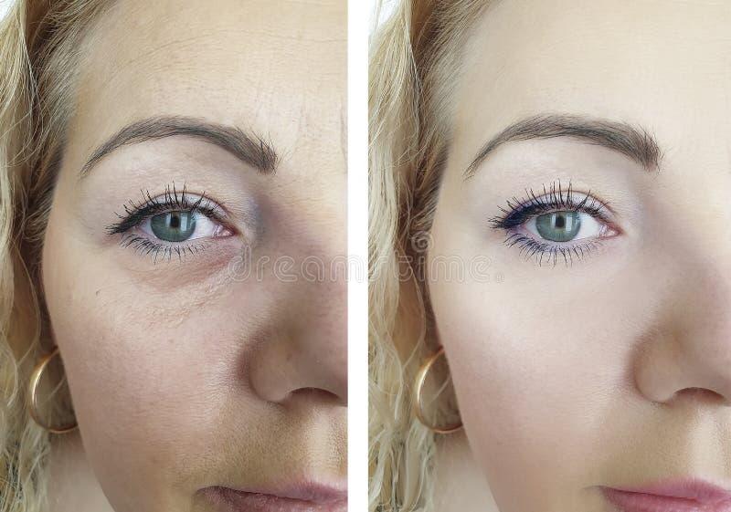 Grinze prima e dopo il trattamento di sollevamento di trattamento anti, procedure invecchianti della donna fotografia stock