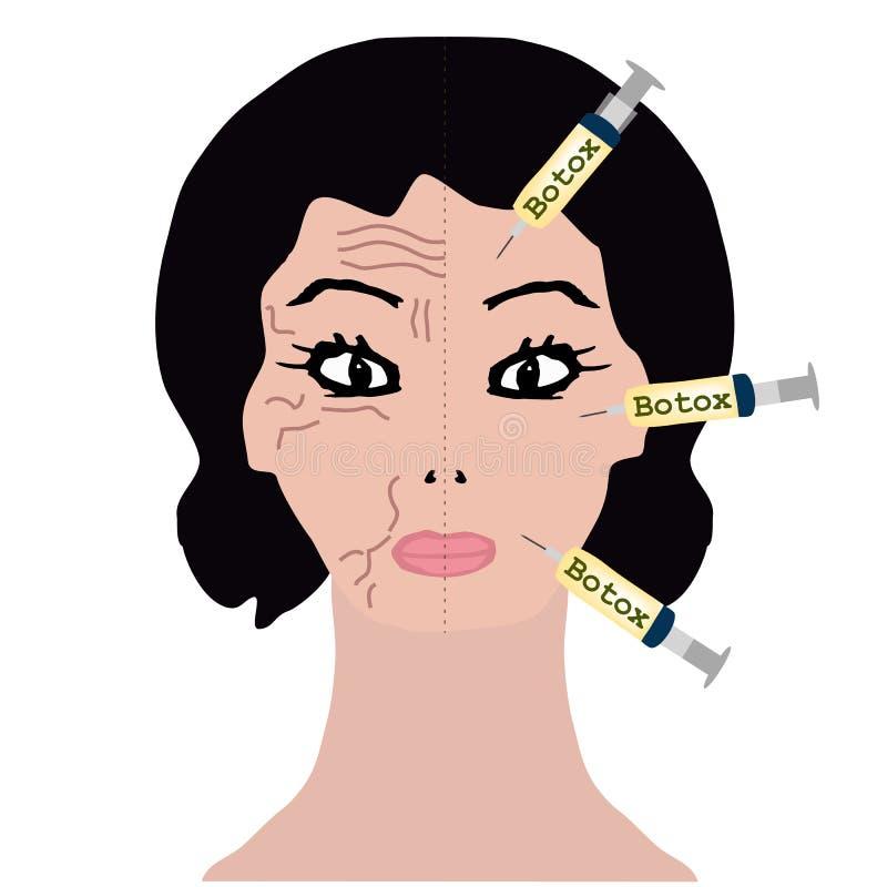 Grinze su a metà del fronte Trattamento di Botox Iniezioni di Botox Infographics Illustrazione di vettore sull'isolato su illustrazione di stock