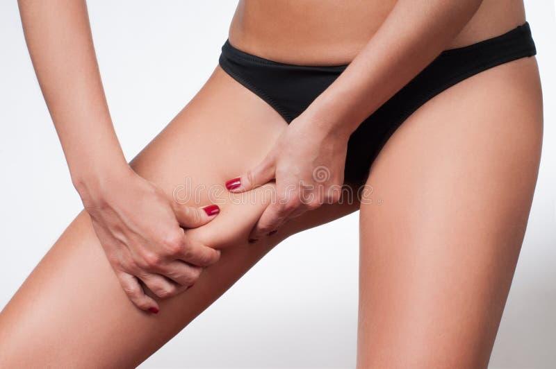 Gripande hud för kvinna på hennes ben Fet borttagningshud för Cellulite arkivbilder